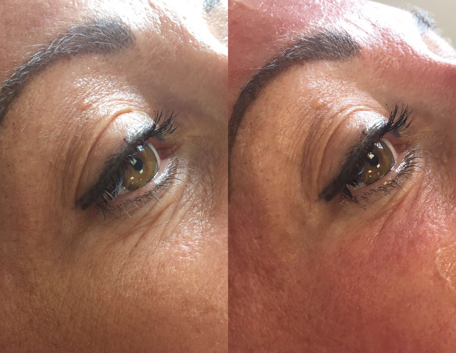 Meso ME Skin Needling Before and After