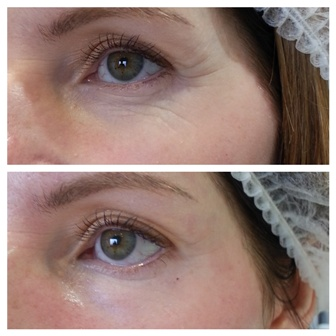 Meso ME Skin Needling - Before and after